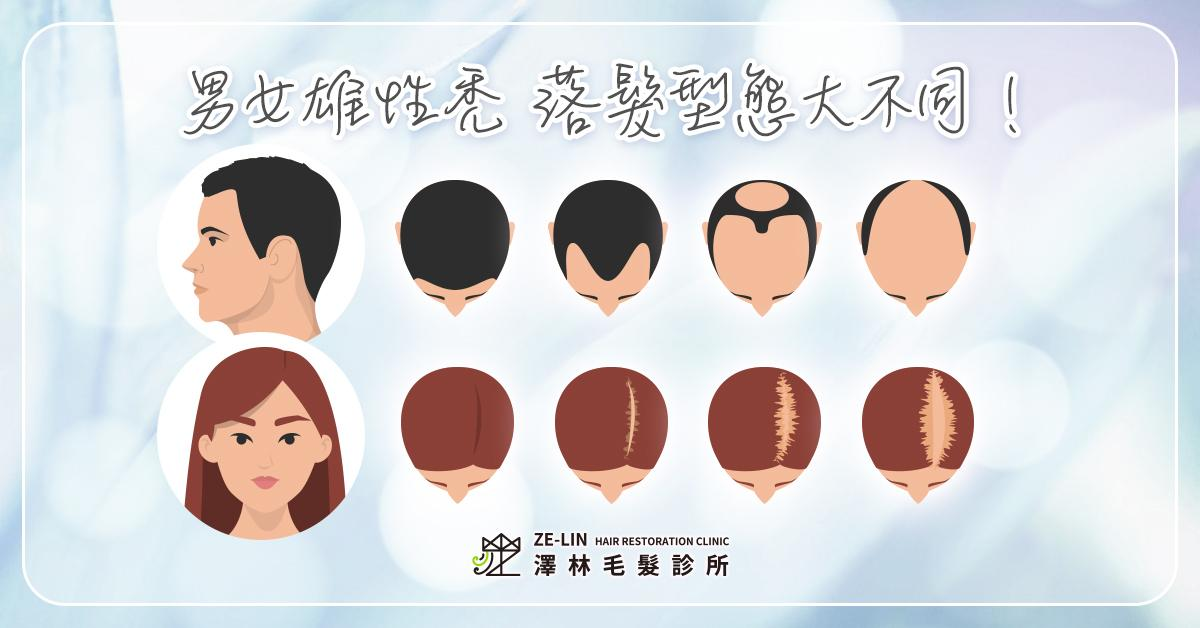 禿頭前兆女
