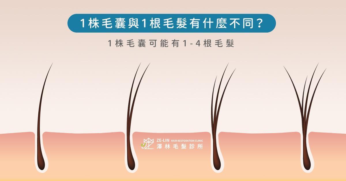 頭髮結構與植髮價錢解析