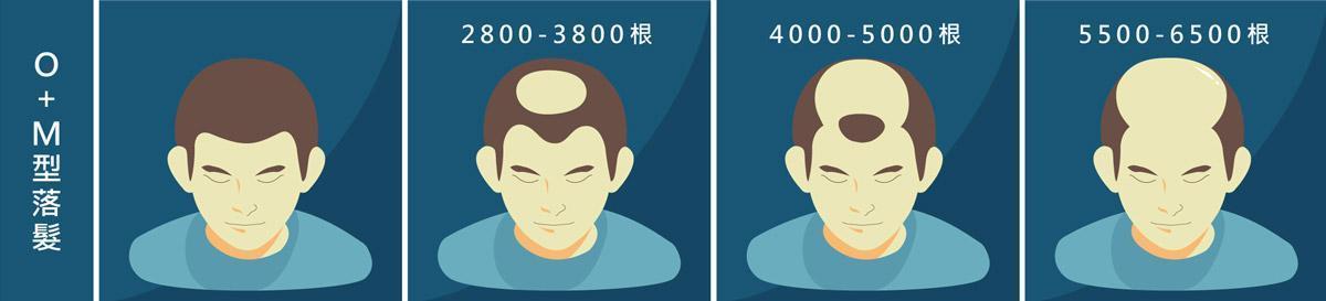 植髮心得:O+M型落髮所需頭髮根數