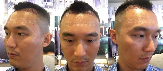 植髮案例分享6