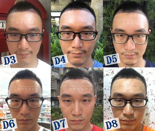 植髮案例分享7