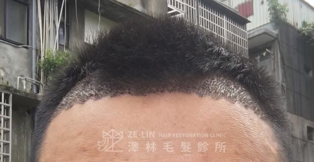 植髮案例分享8