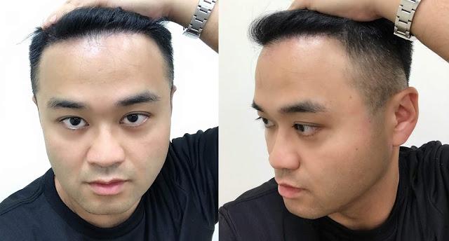 植髮心得分享FUT手術術後三個月
