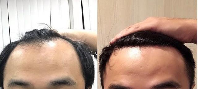 植髮心得分享FUT手術術後六個月