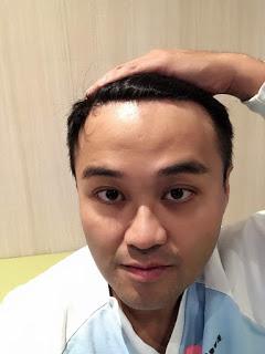 植髮心得分享FUT手術術後九個月