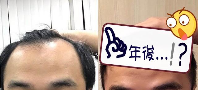 植髮心得分享