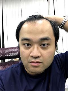 植髮心得分享FUT手術術前