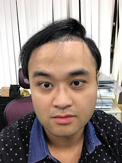 植髮心得分享FUT手術術後隔天洗頭