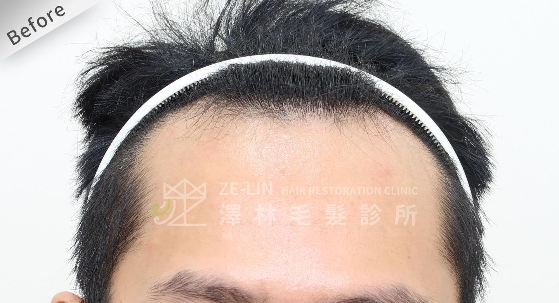 M型禿植髮FUE高密度植髮心得推薦-植髮專家澤林毛髮診所謝宗廷醫師-雄性禿治療(柔沛)-術前7-1
