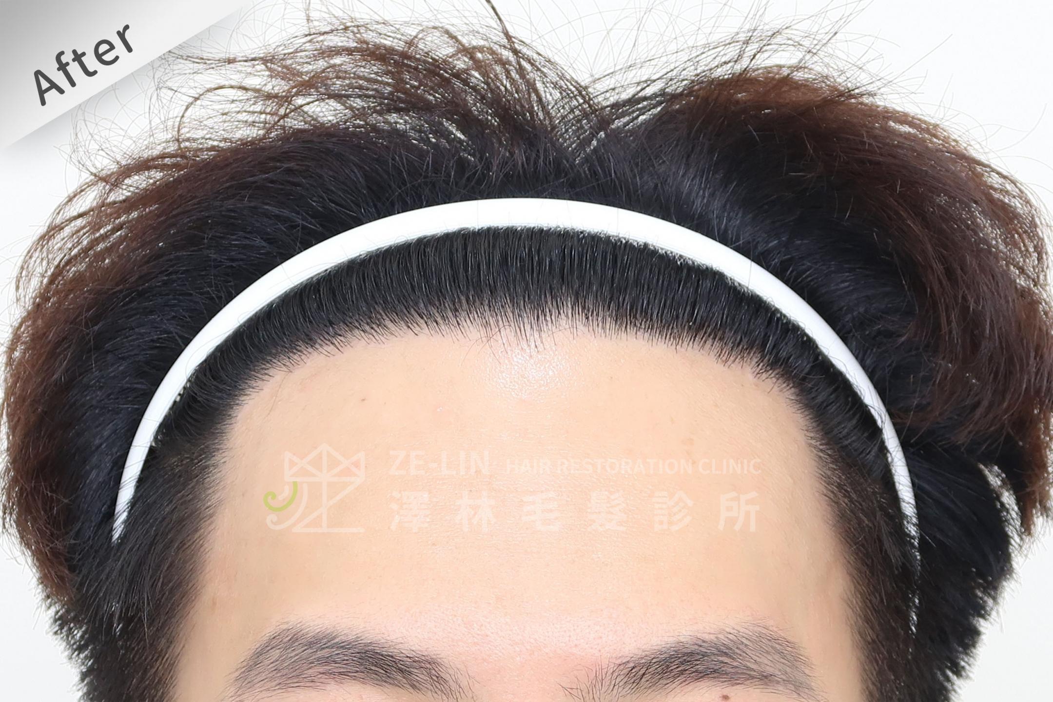 M型雄性髮際線FUE植髮手術高存活率案例心得分享術後
