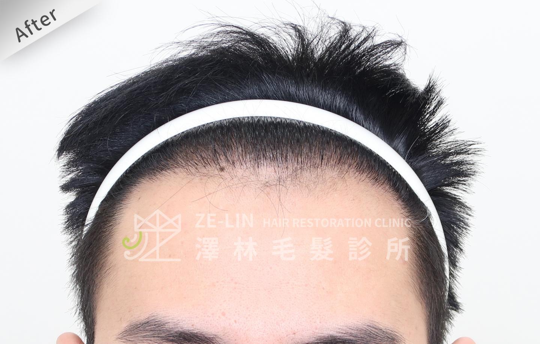 雄性禿植髮心得:術後前額