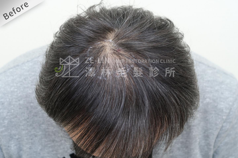 髮旋禿頭FUE高密度植髮心得推薦-植髮專家澤林毛髮診所謝宗廷醫師-雄性禿治療(柔沛)-術前3-1