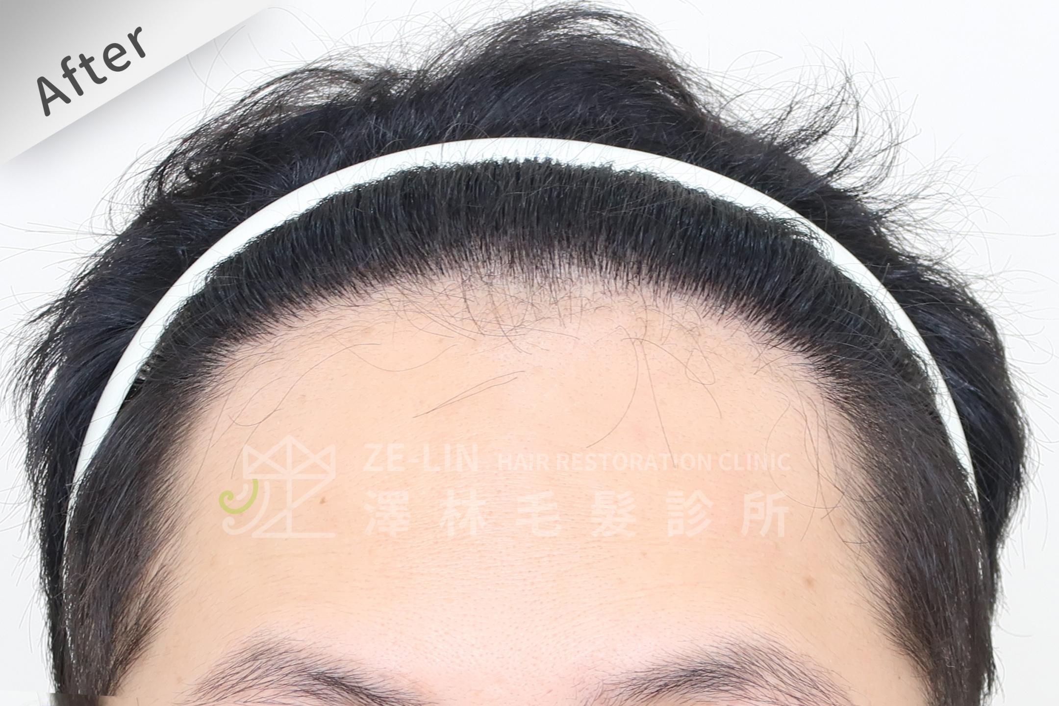 M型禿FUE植髮手術推薦案例心得分享術後