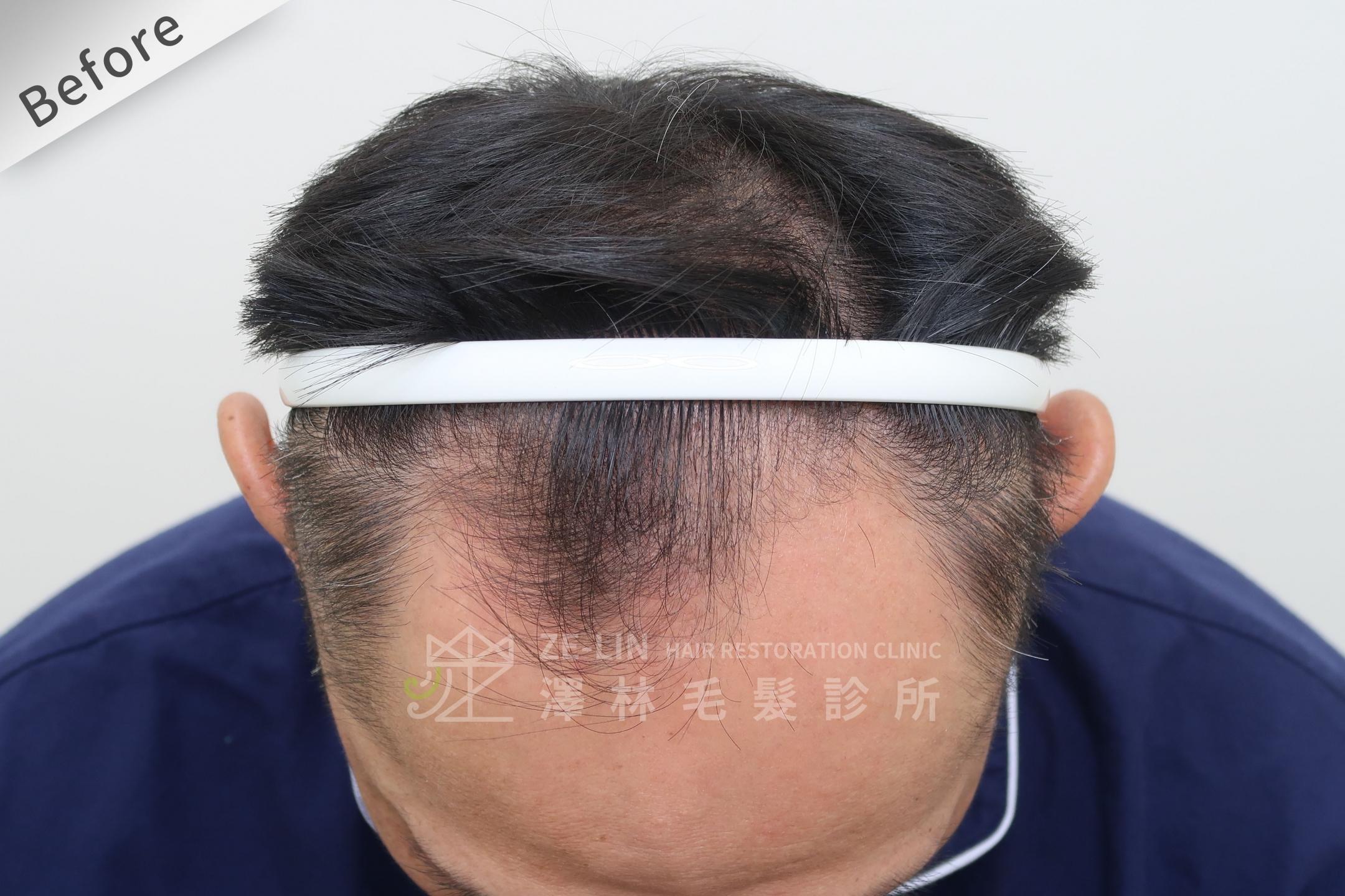 M型禿植髮案例心得分享術前6-1