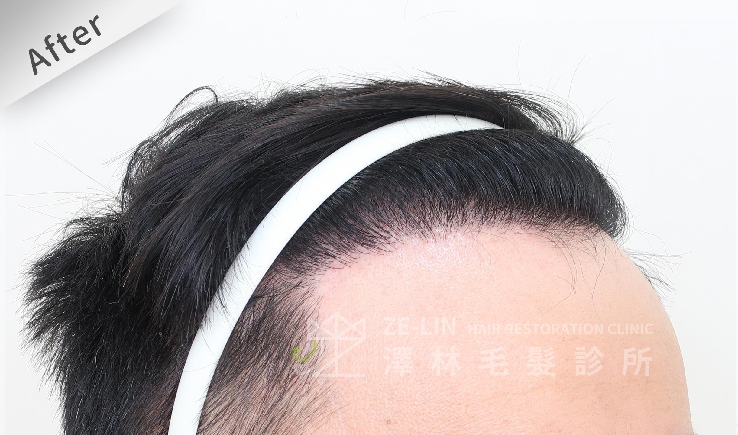 M型禿植髮推薦案例心得分享術後12-2
