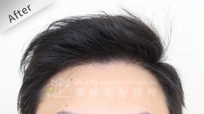植髮失敗(二次植髮)男生M型禿植髮FUE高密度植髮心得推薦-植髮專家澤林毛髮診所謝宗廷醫師-雄性禿治療(新髮靈)-術後8-1