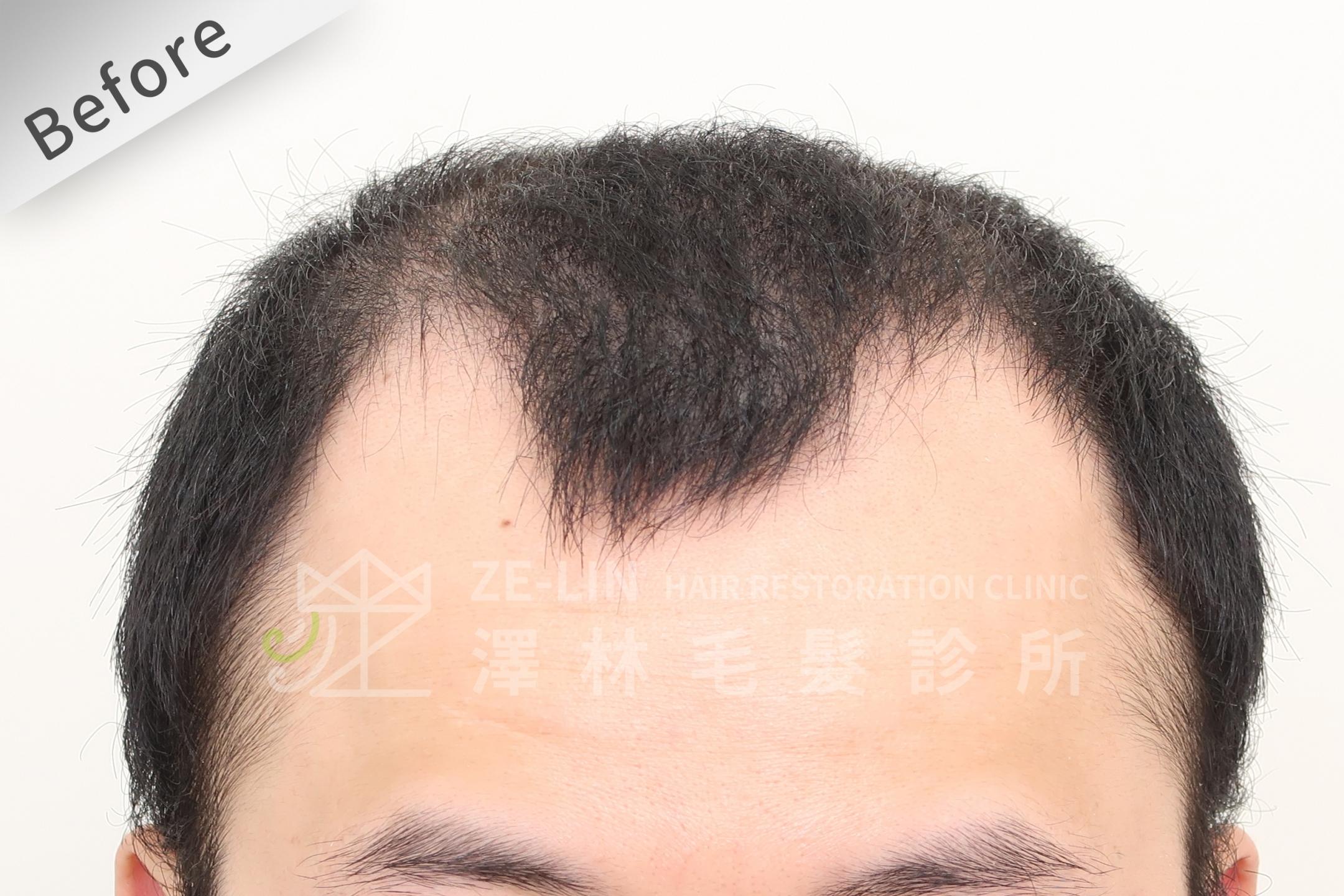 雄性禿植髮評價:術前正面