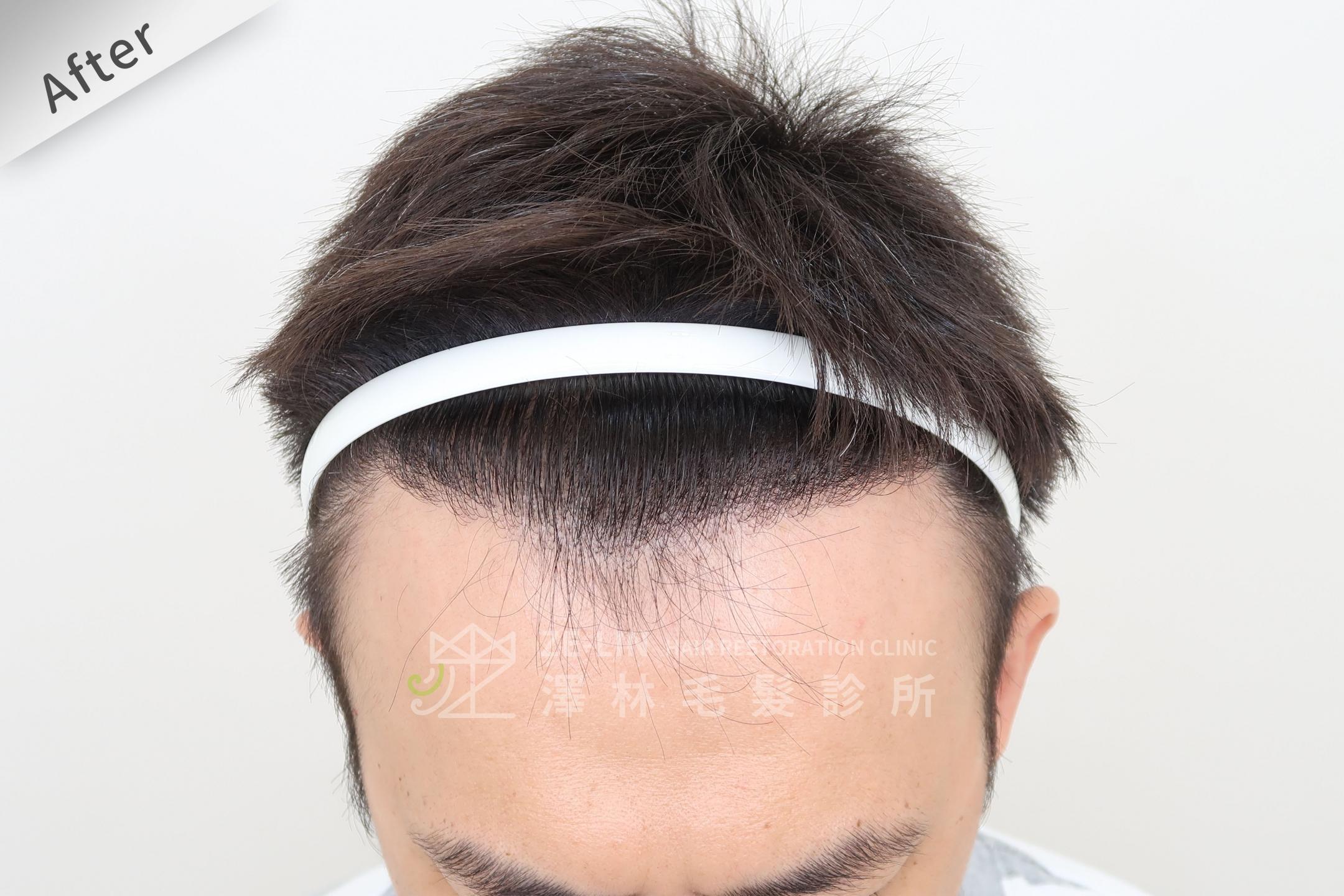 M型禿植髮推薦案例心得分享術後9-2