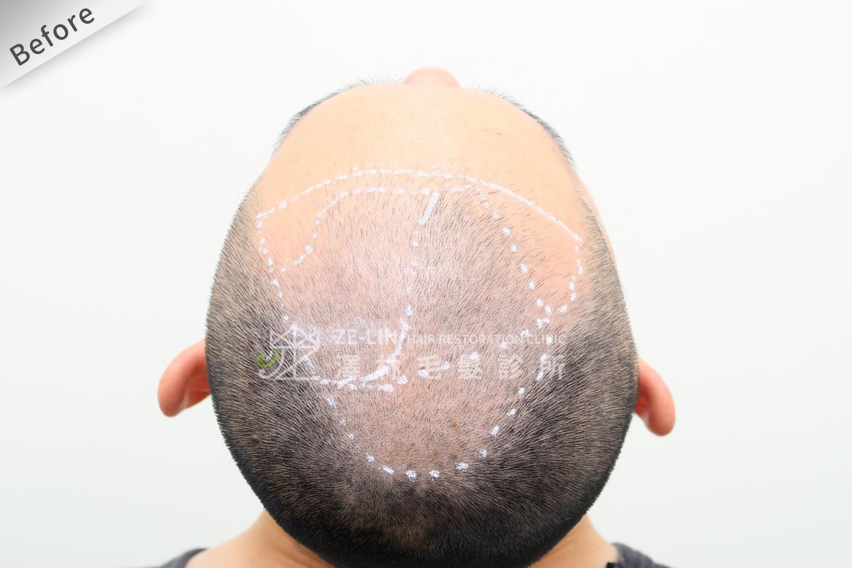 植髮評價:術前頭頂