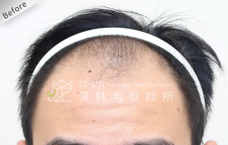 雄性禿植髮心得:術前前額