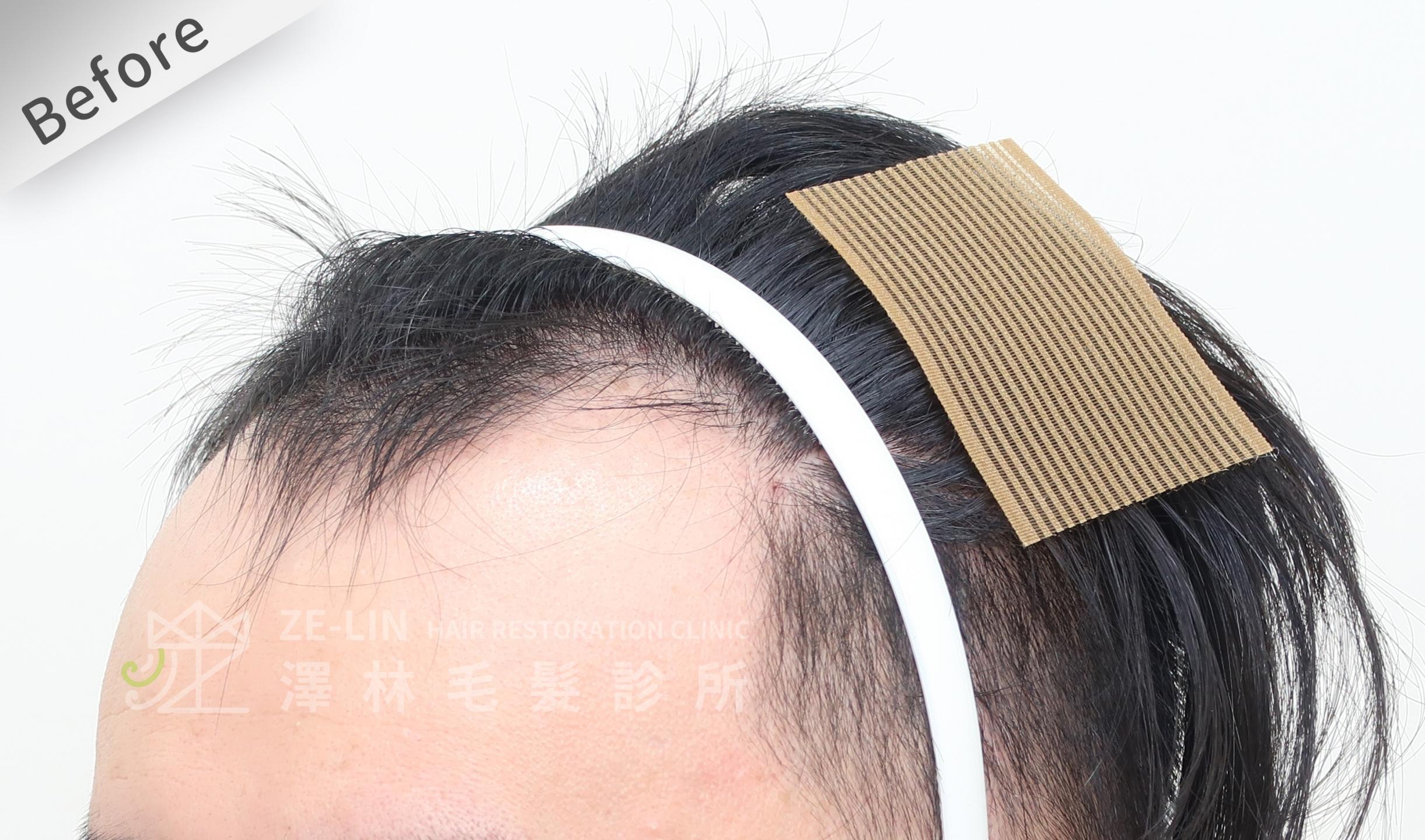M型禿植髮推薦案例心得分享術前12-3