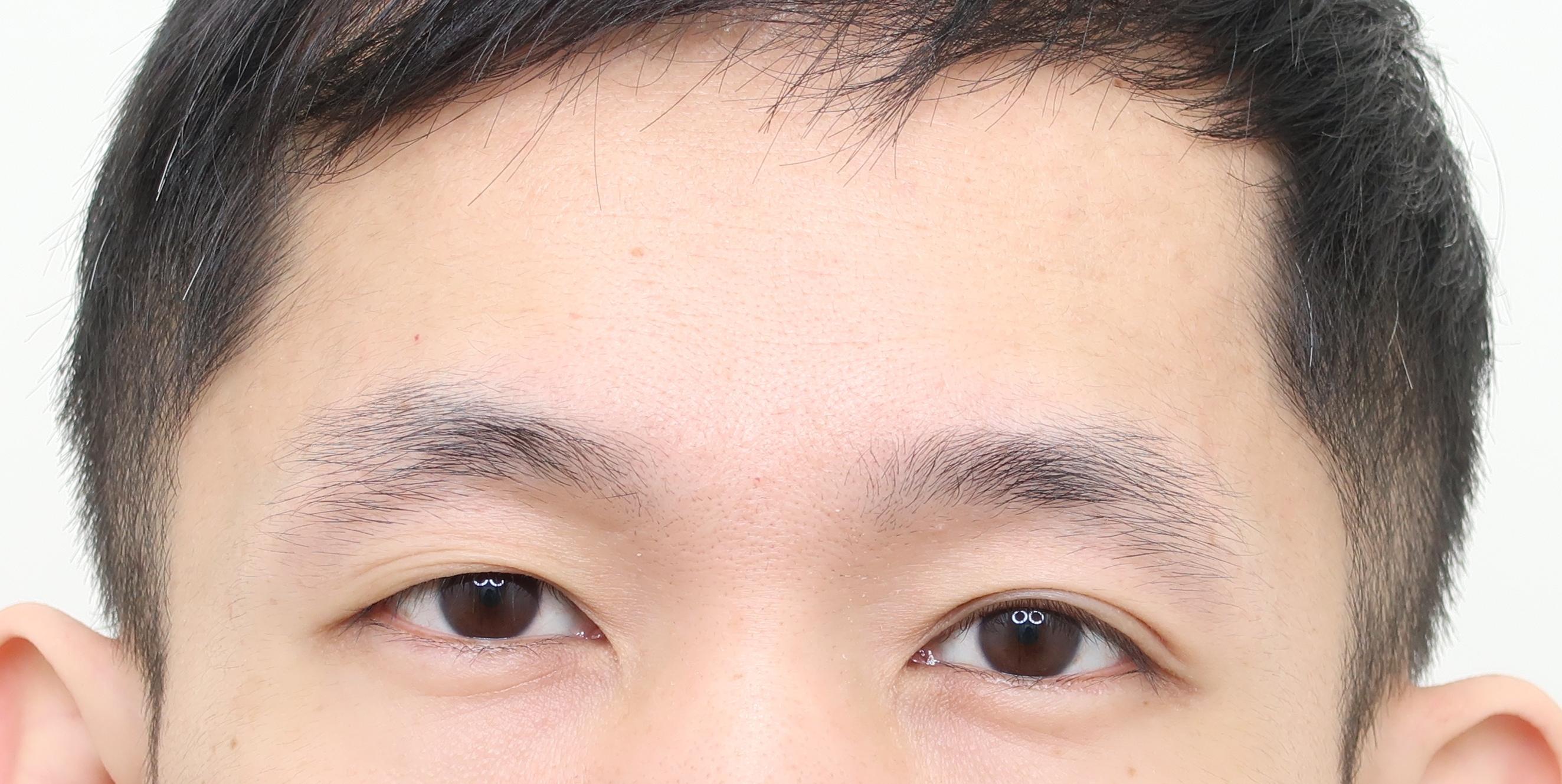 植眉推薦澤林毛髮診所謝宗廷醫師-眉頭稀疏斷眉紋眉繡眉飄眉-術前3-1