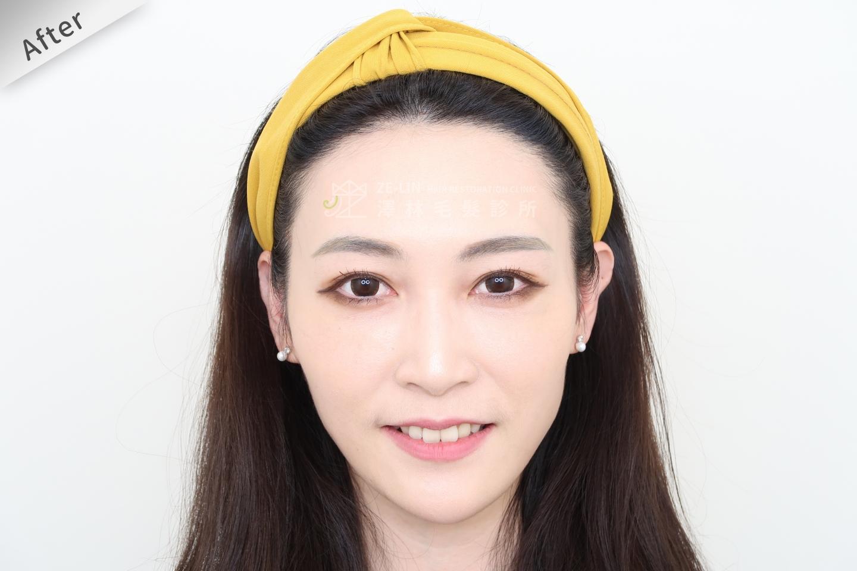 [女性植髮]女性高額頭植髮術後2-1