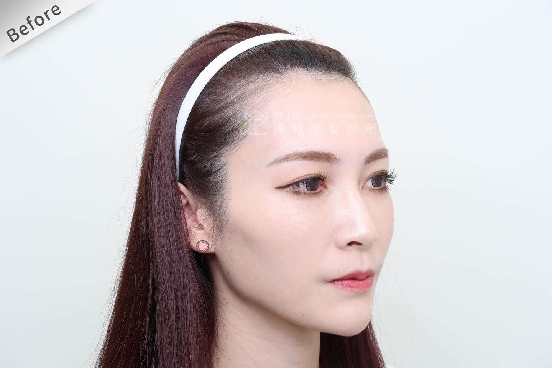[女性植髮]女性高額頭植髮術前2-2