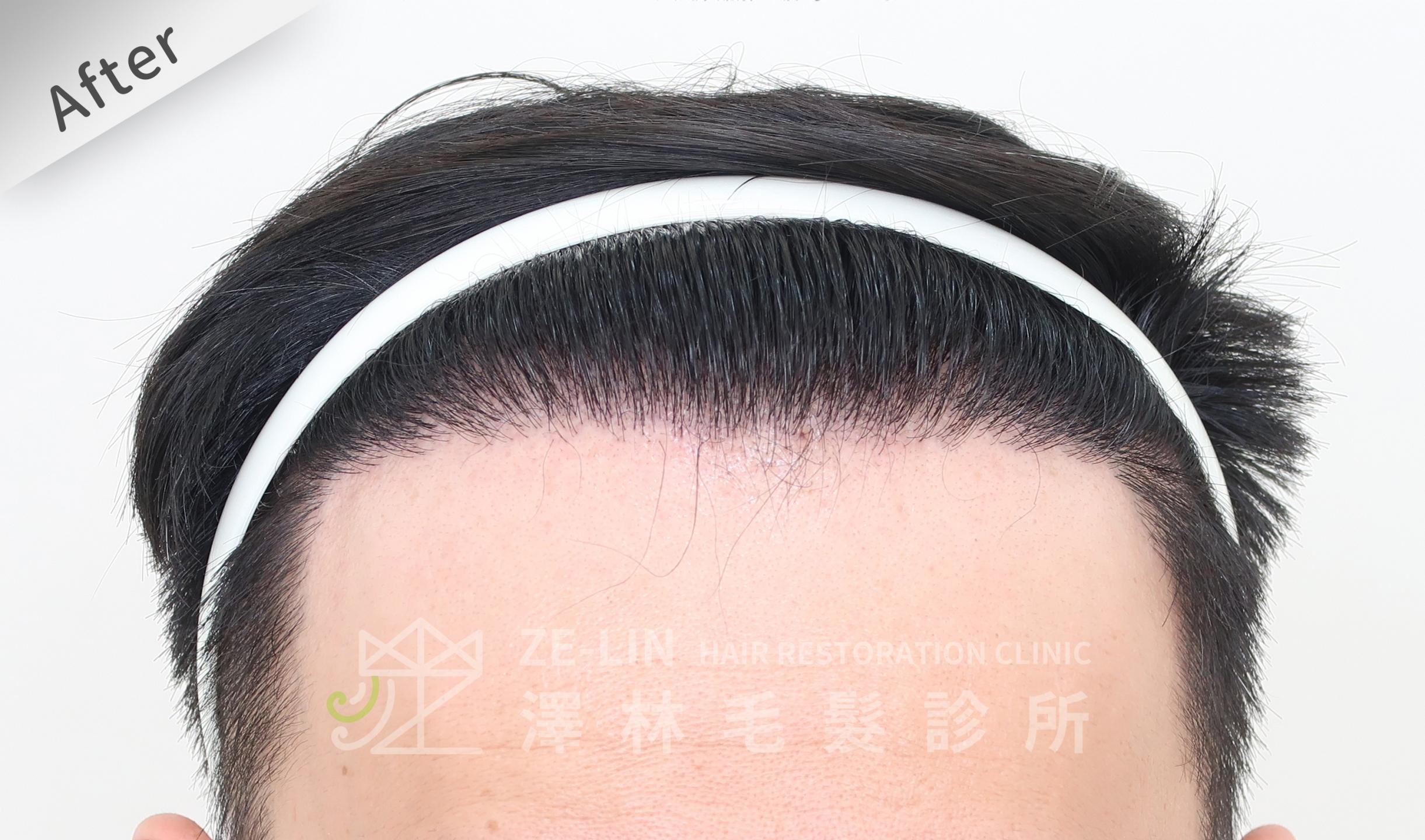 M型禿植髮推薦案例心得分享術後12-1