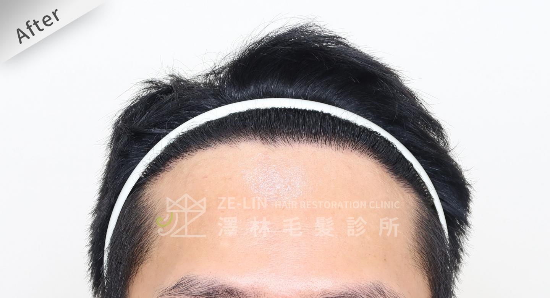 M型禿植髮FUE高密度植髮心得推薦-植髮專家澤林毛髮診所謝宗廷醫師-雄性禿治療(柔沛)-術後7-1