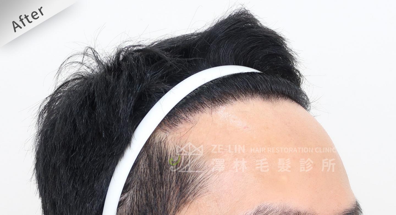 M型禿植髮推薦FUE高密度植髮心得推薦-植髮專家澤林毛髮診所謝宗廷醫師-雄性禿治療(柔沛)-術後7-2