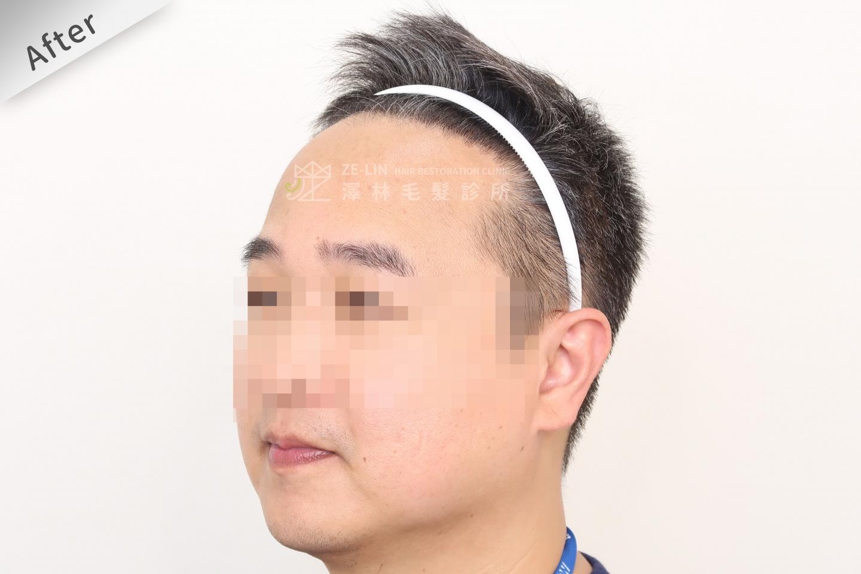 M型禿植髮推薦FUE高密度植髮心得推薦-植髮專家澤林毛髮診所謝宗廷醫師-雄性禿治療(柔沛)-術後10-3