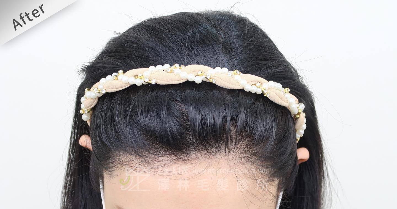 [女性植髮]女生高額頭額角禿頭髮際線免剃FUE植髮-美型髮際線植髮首選澤林毛髮診所謝宗廷醫師-術後3-2