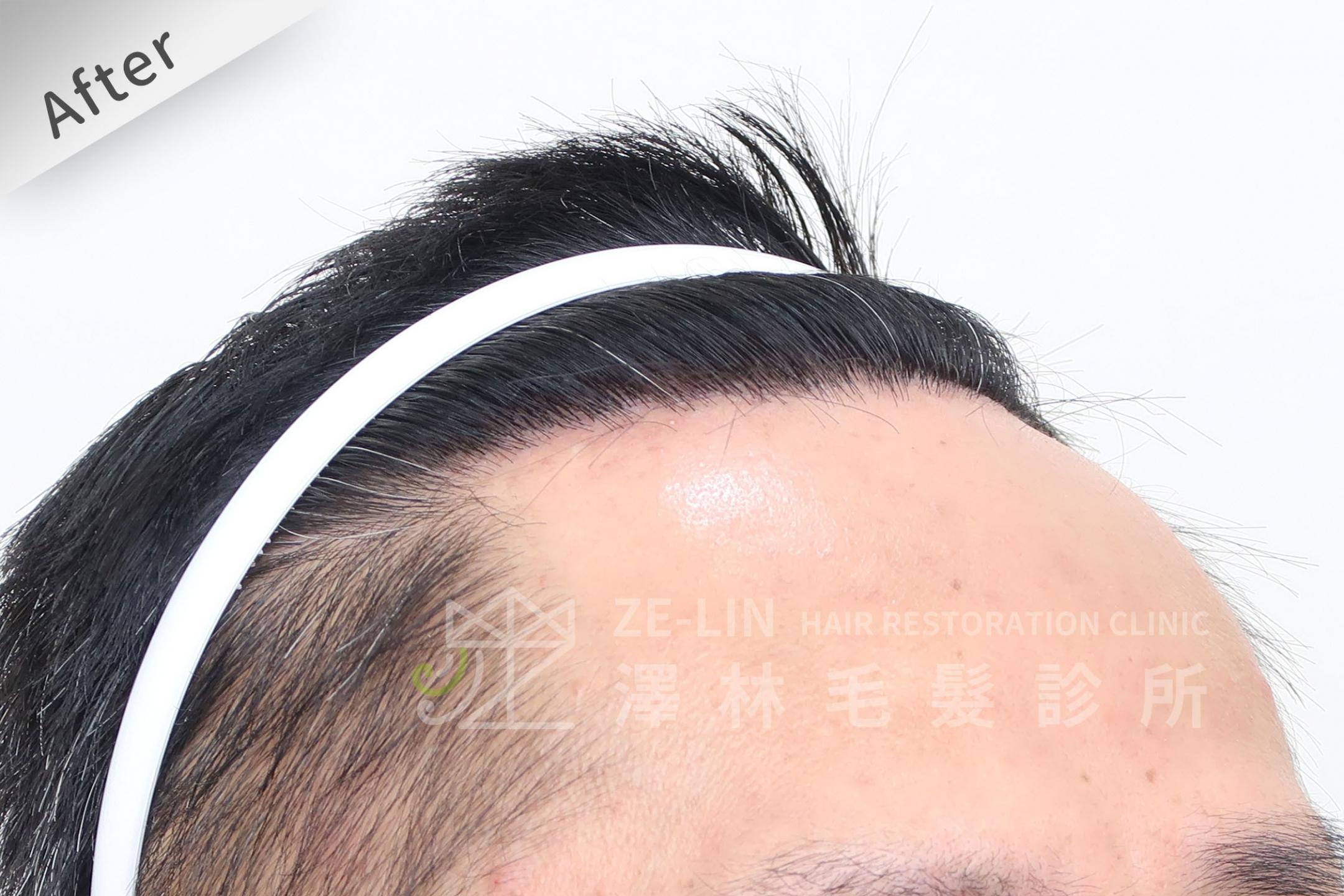 M型禿植髮心得案例分享術後6-2