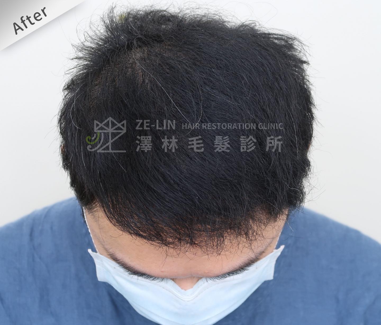 FUE植髮案例:術後頭頂