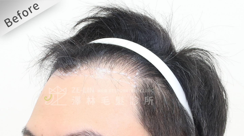植髮失敗(二次植髮)男生M型禿植髮FUE高密度植髮心得推薦-植髮專家澤林毛髮診所謝宗廷醫師-雄性禿治療(新髮靈)-術前8-2