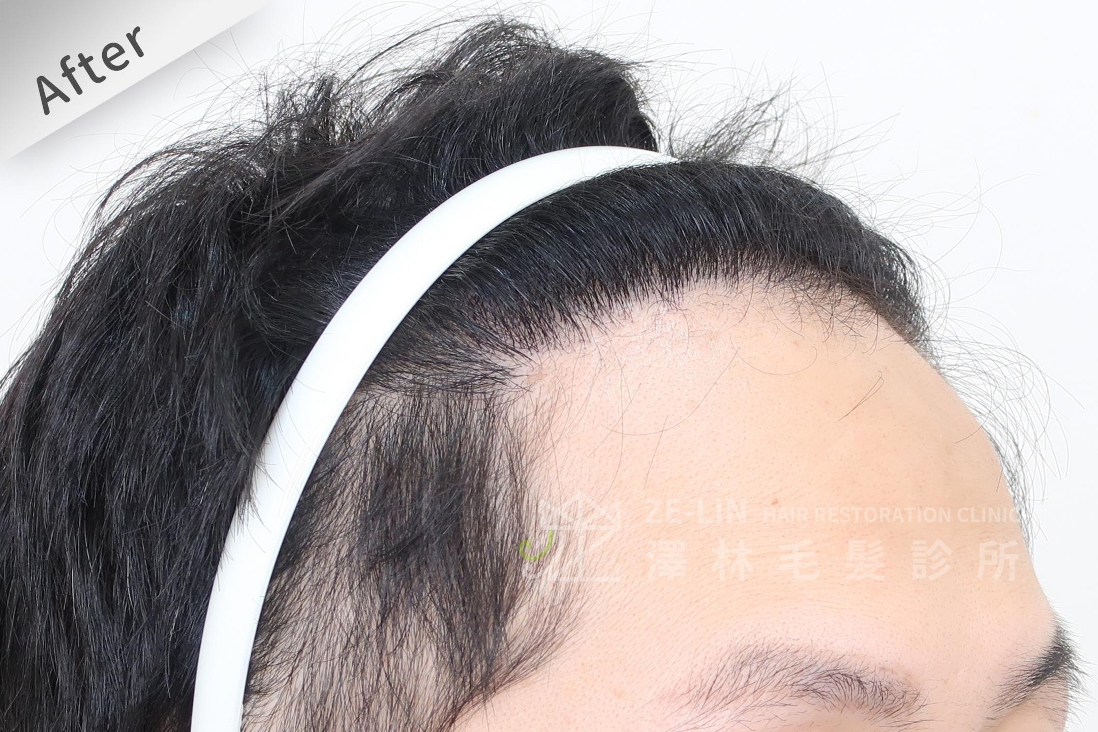M型禿髮際線FUE植髮手術成功案例心得分享術後