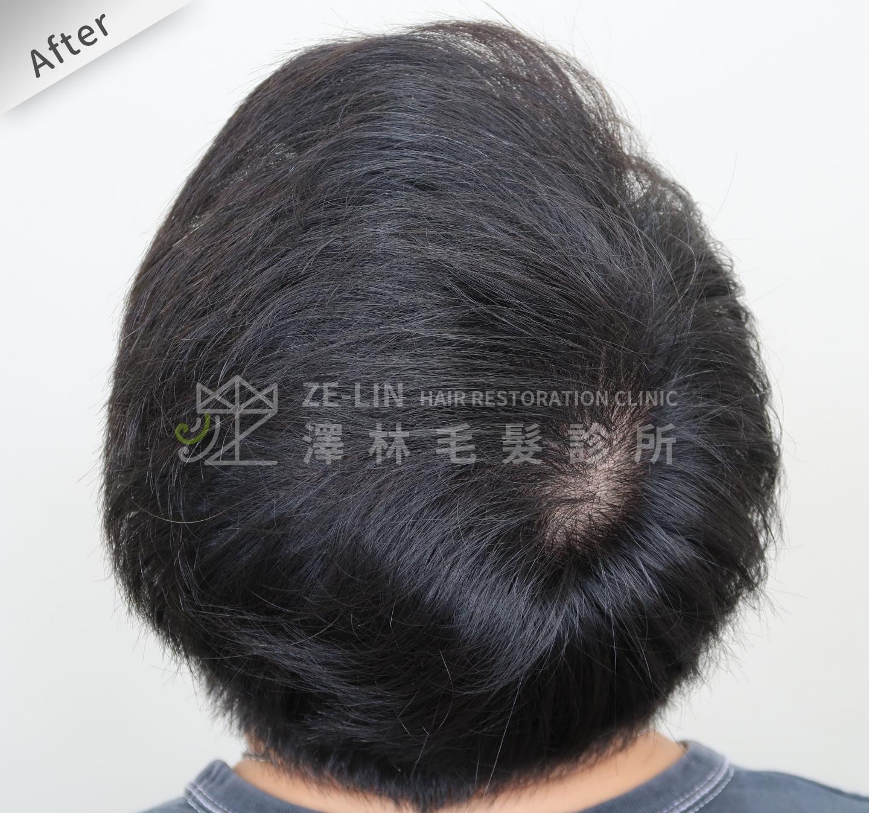 分髮線禿頭FUE高密度植髮心得推薦-植髮專家澤林毛髮診所謝宗廷醫師-雄性禿治療(柔沛)-術後4-2