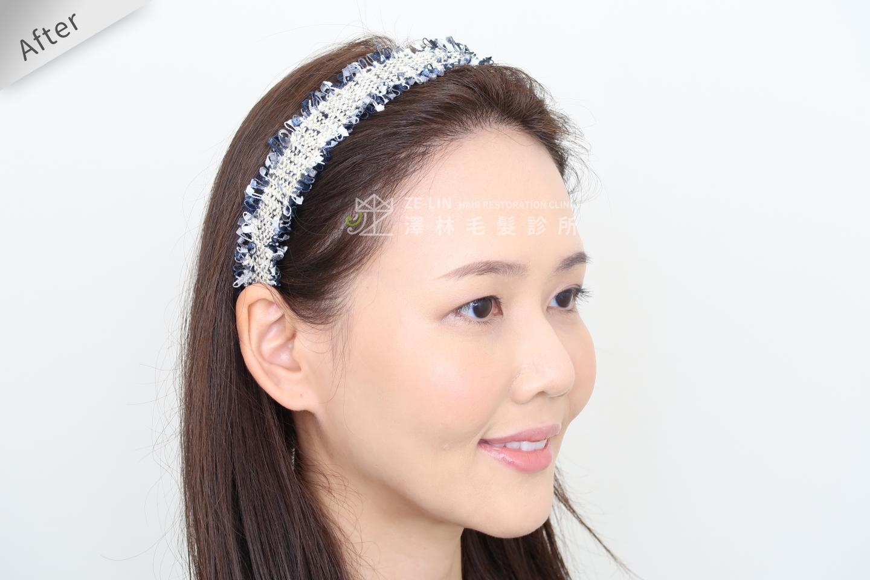 [女性植髮]高額頭女性髮際線免剃FUE植髮-美型髮際線推薦澤林毛髮診所謝宗廷醫師-術後1-2