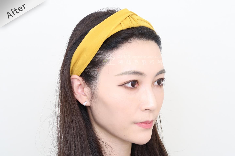[女性植髮]女性高額頭植髮術後2-2