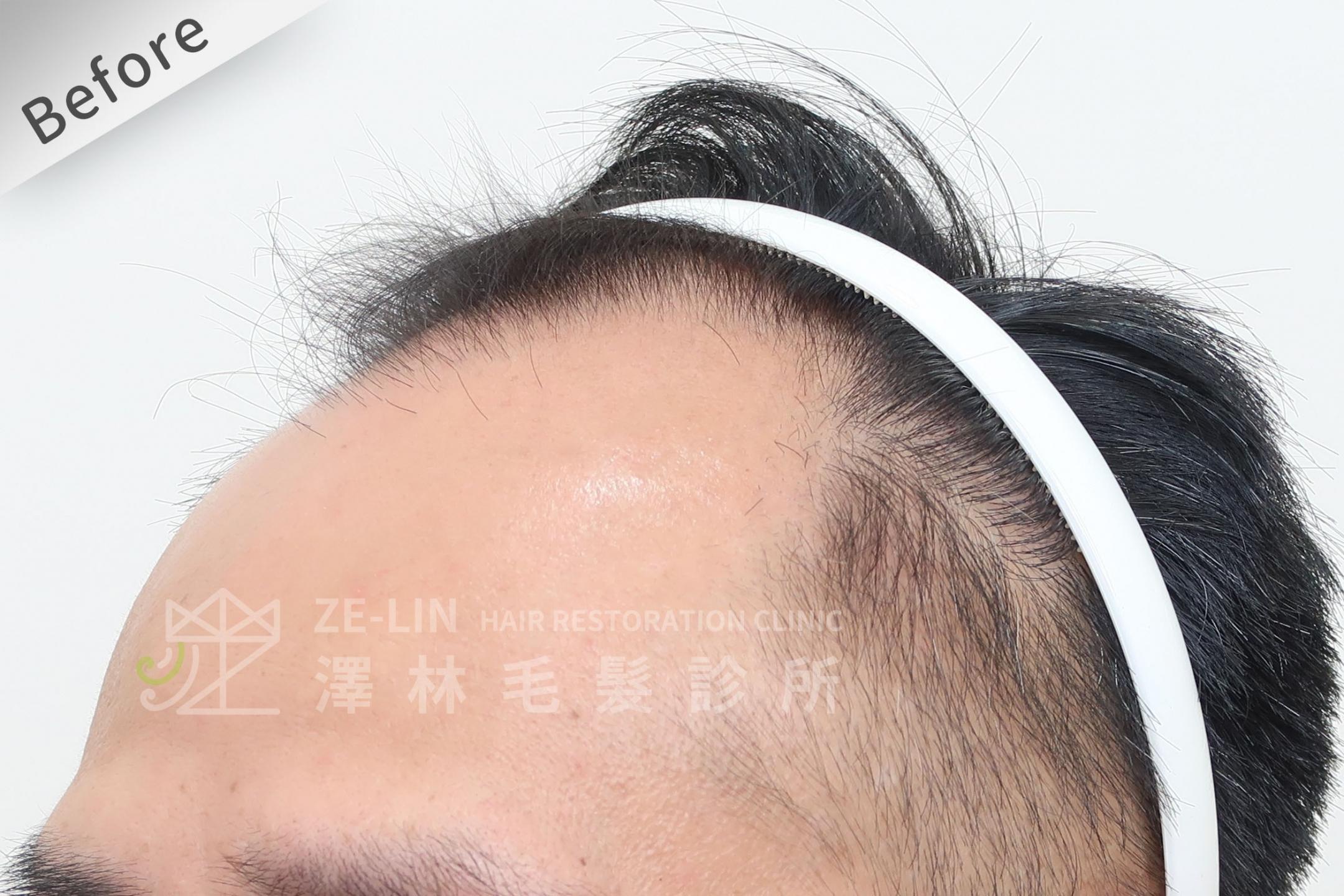 M型禿植髮心得案例分享術前6-3