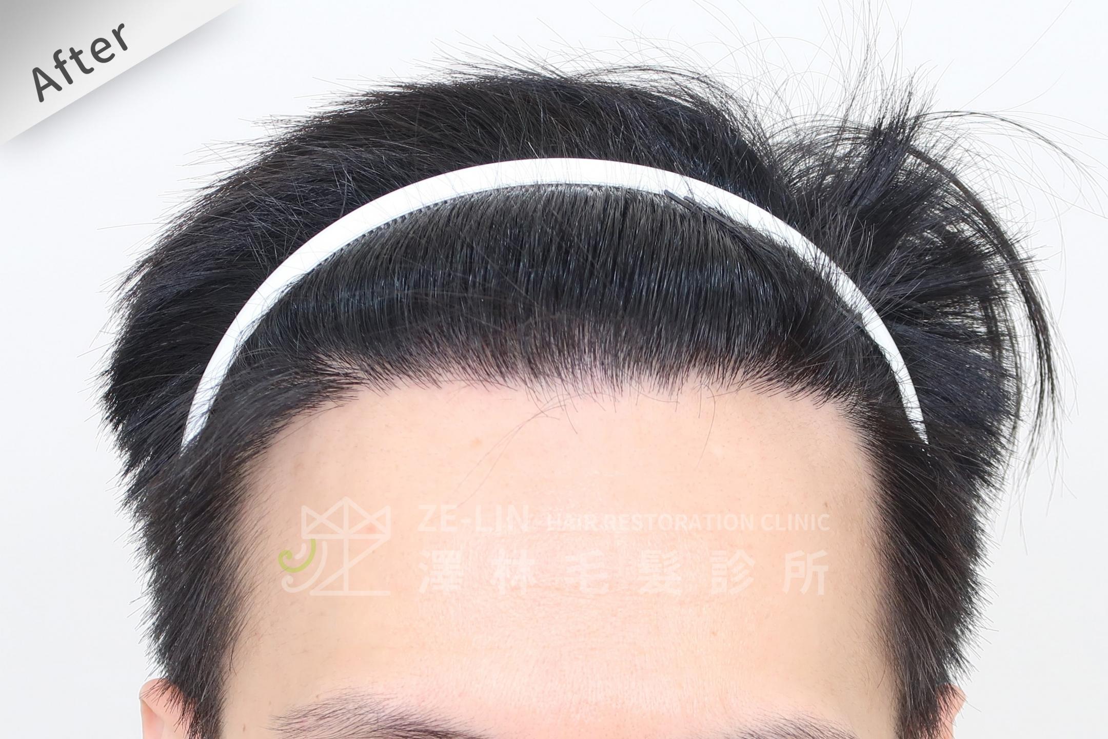 M型雄性髮際線FUE植髮手術-澤林毛髮診所植髮推薦-案例心得分享術後