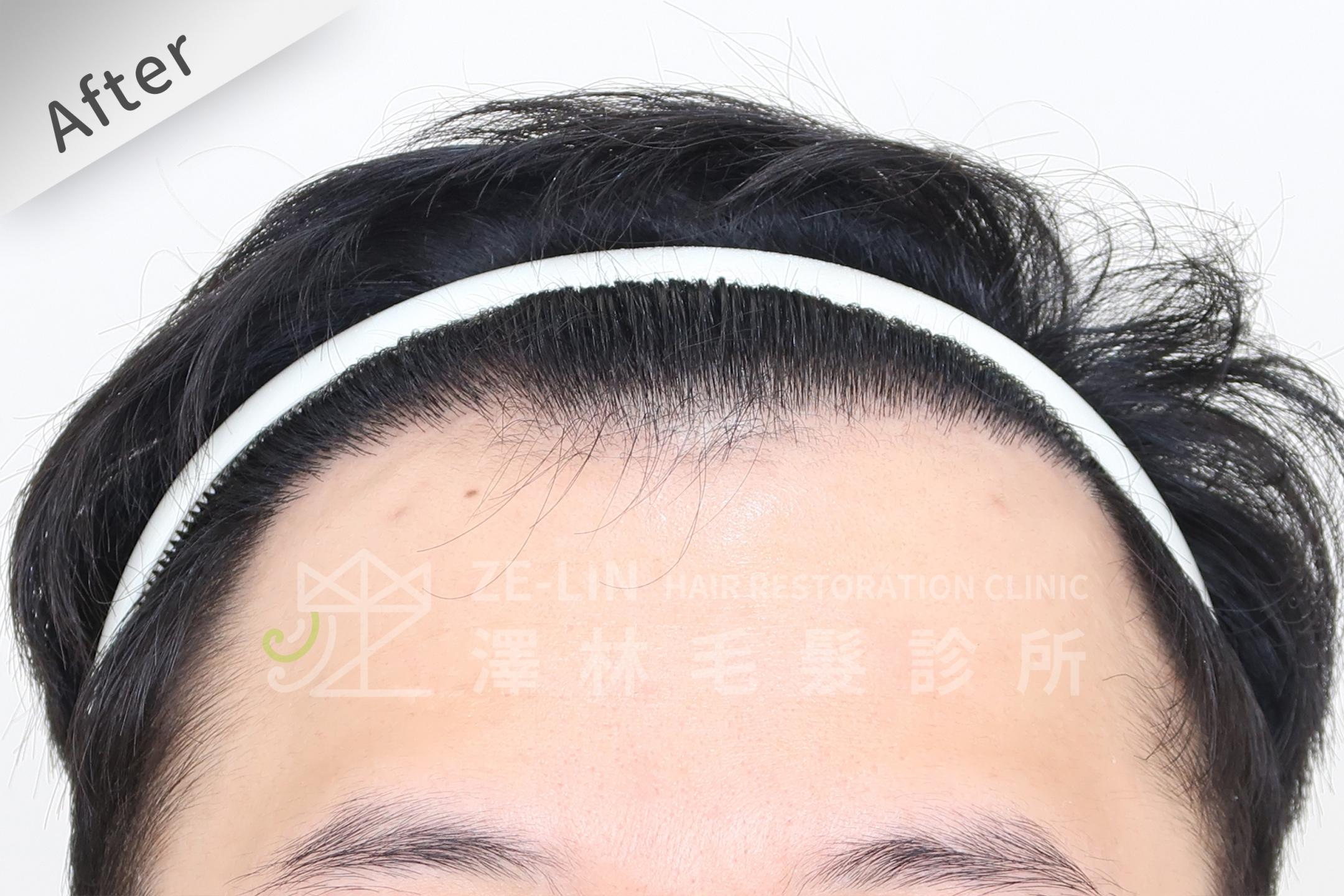雄性禿植髮評價:術後正面