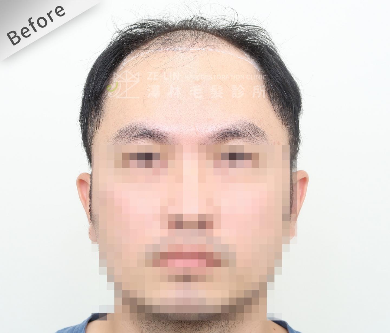 FUE植髮案例:術前正面