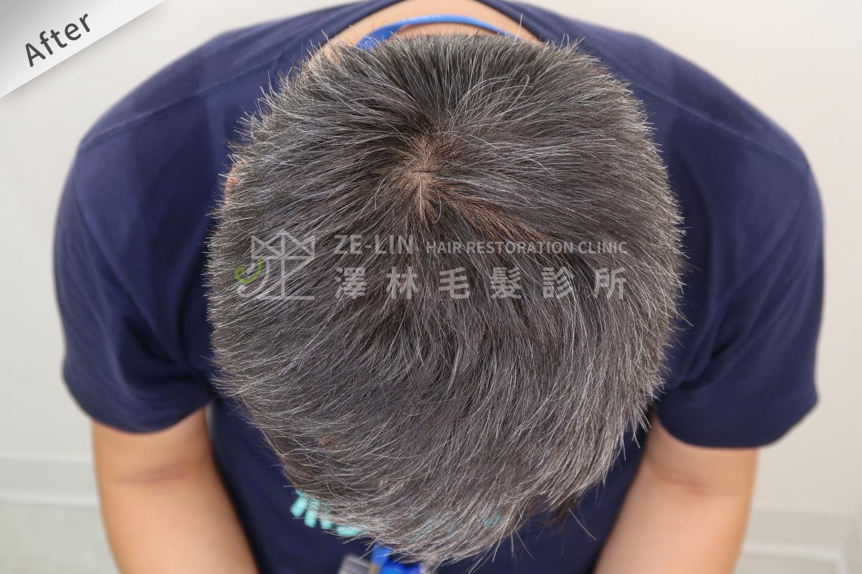髮旋禿頭FUE高密度植髮心得推薦-植髮專家澤林毛髮診所謝宗廷醫師-雄性禿治療(柔沛)-術後3-1