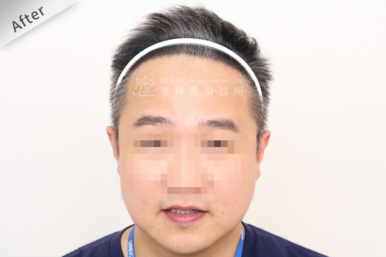 M型禿植髮推薦FUE高密度植髮心得推薦-植髮專家澤林毛髮診所謝宗廷醫師-雄性禿治療(柔沛)-術後10-1