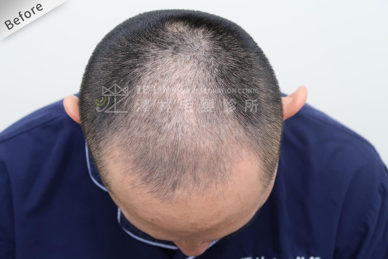 植髮心得:術前頭頂