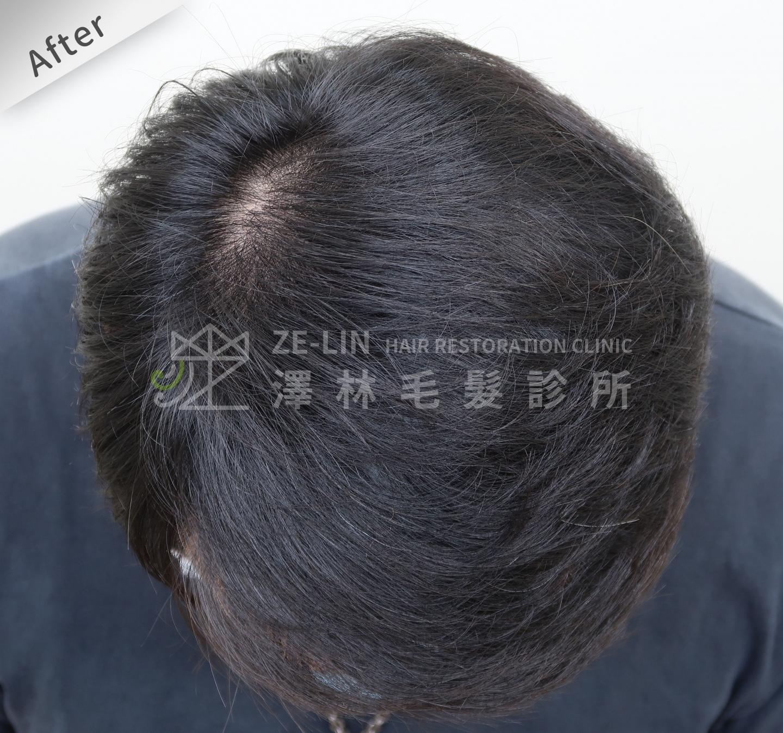 分髮線禿頭FUE高密度植髮心得推薦-植髮專家澤林毛髮診所謝宗廷醫師-雄性禿治療(柔沛)-術後4-1