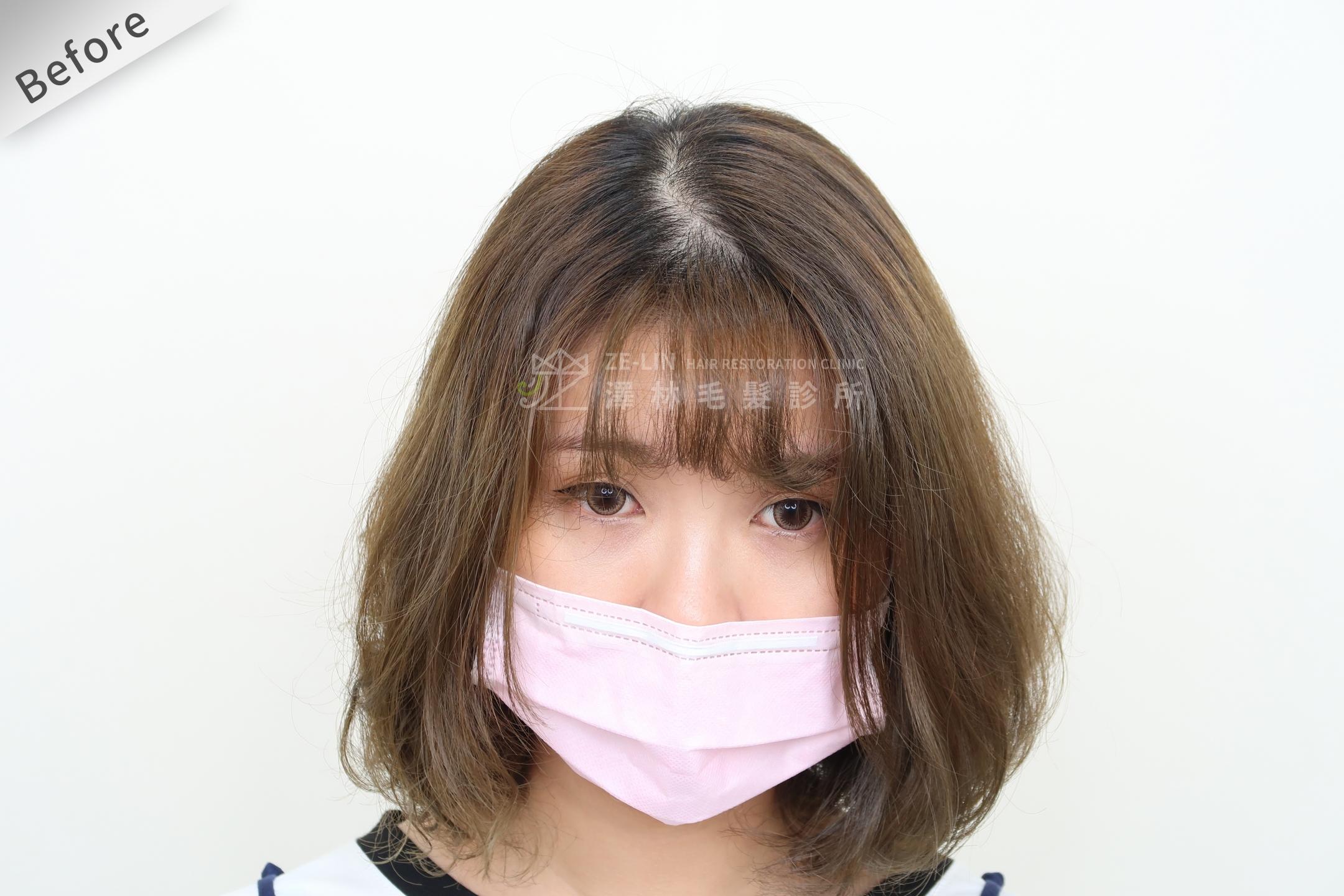 PRP自體生長因子育髮治療女生雄性禿改善頭頂看到頭皮術前(1)