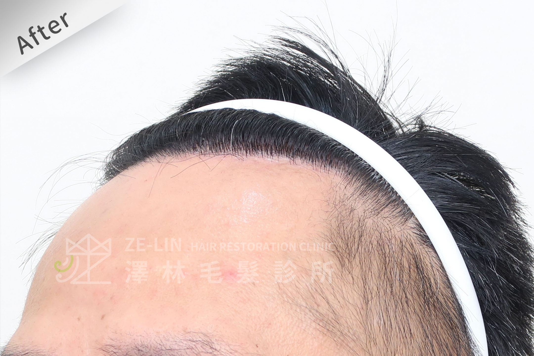 M型禿植髮心得案例分享術後6-3